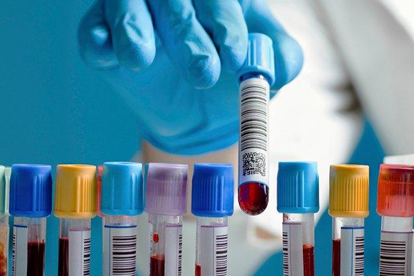 ¿Diabetes gestacional? Curva de la glucosa con Adeslas